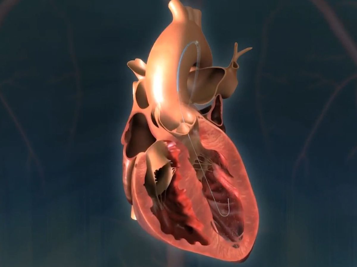 Study shows COVID-19 could impact heart