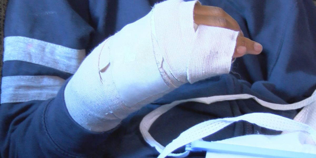 Mom: Student hand broken by bully; Huntsville parents want action